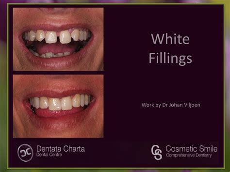 Treatments Gallery – Welcome to Dentata Charta
