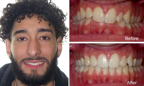 Male 21 Years Old with Overbite Before and After