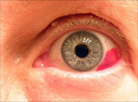 Painless Red Eye - Photo Quiz - American Family Physician