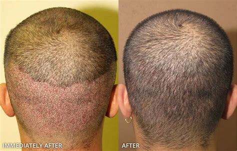 FUE Donor site - Before and After Pictures * | Dr Turowski