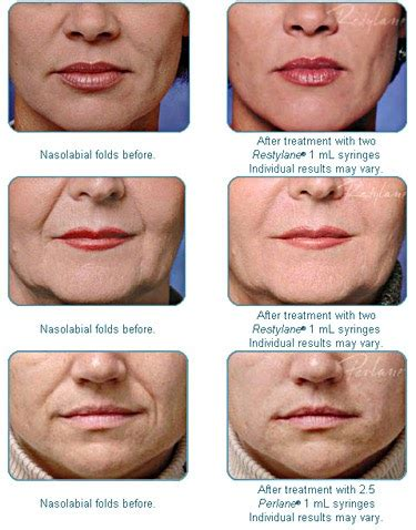 goldberg centre for cosmetic surgery: Restylane and