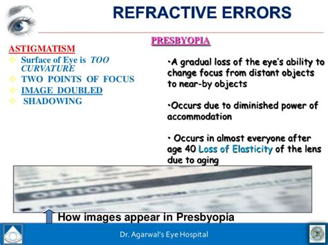 Astigmatism Meaning Tagalog - Hypnotherapy to Lose Weight